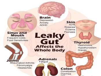 Leaky-Gut-Symptoms-and-Effects