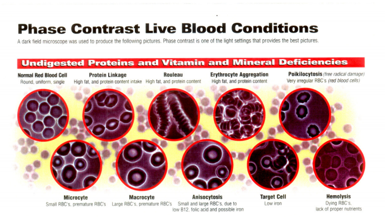 Live-blood-analysis-Billings-Montana